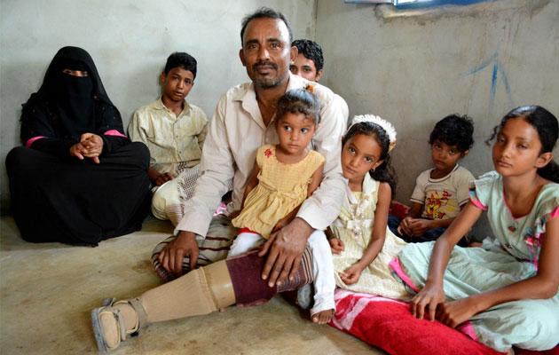 38-årige Mocktar er blevet såret under en konflikt i Yemen. Her sidder han med familien.